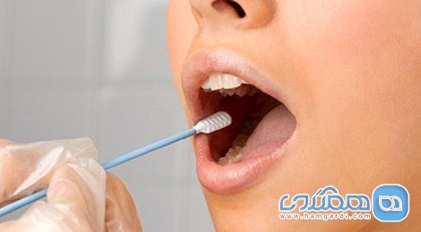 دهانی که نشانه های ایدز دارد