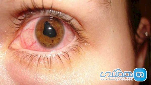 مالیدن چشم ها باعث این بیماری می شود
