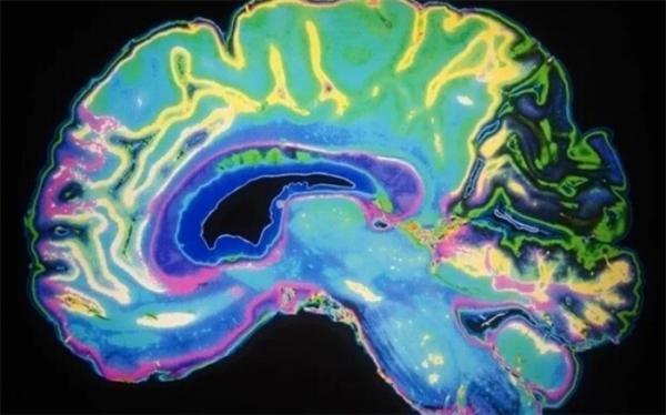 اختلال عملکردهای مهم مغز با نرم کننده ها